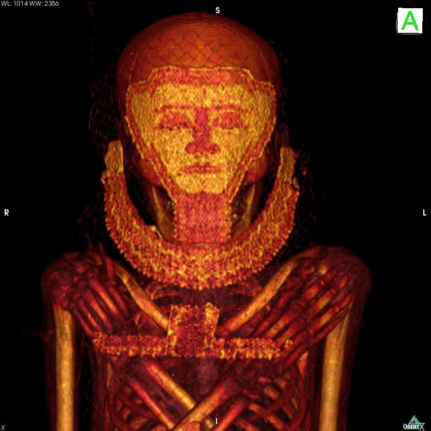 Imagen de una de las momias analizadas con escáner- Universidad de Granada