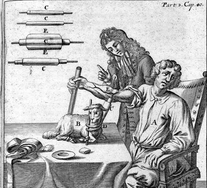 Primera transfusión sanguínea el 15 de junio de 1667, por Jean Baptiste Denys