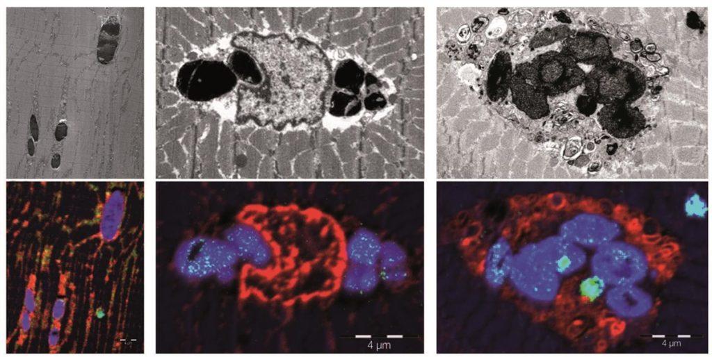 La mioglobina, la proteína responsable del color rojo de los músculos, tiene como función principal el transporte y el almacenamiento intracelular de oxígeno- IDIBELL
