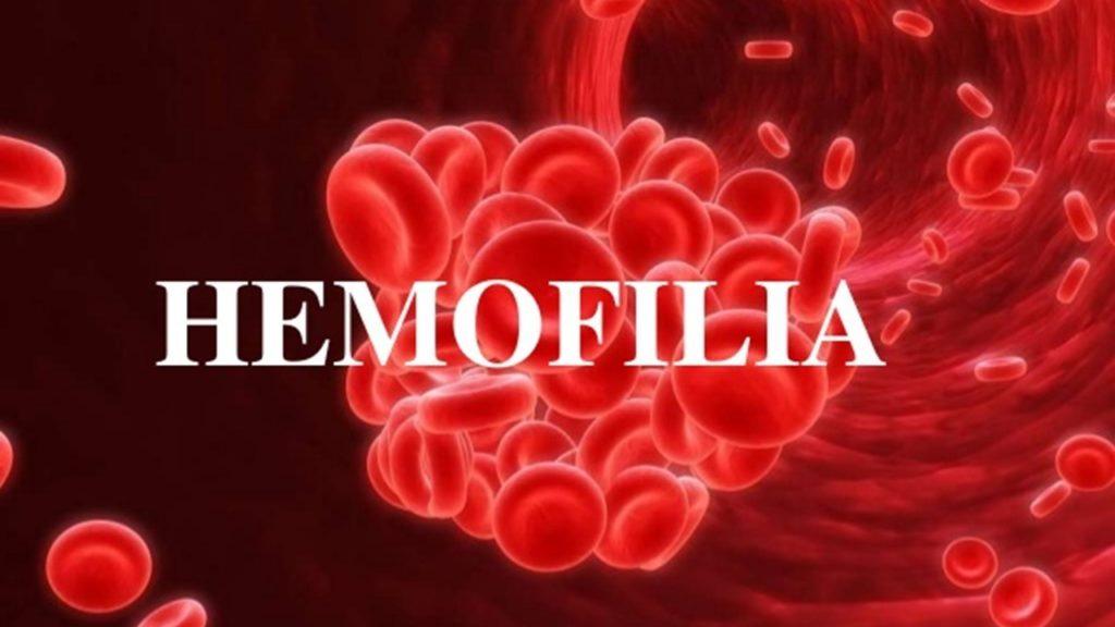 Hemofilia- UCJC