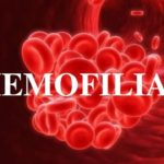 Día Mundial de la Hemofilia, 17 de abril